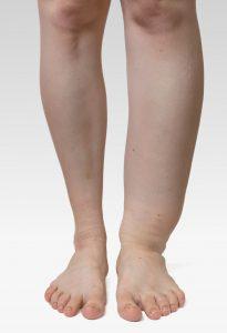 benen-met-oedeem-provitaal-fysiotherapie-meeden-oedeemtherapie